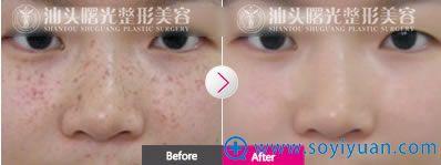 激光祛斑案例见证祛斑后是不会留疤痕的