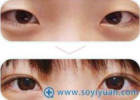 苏州美莱双眼皮手术前后对比