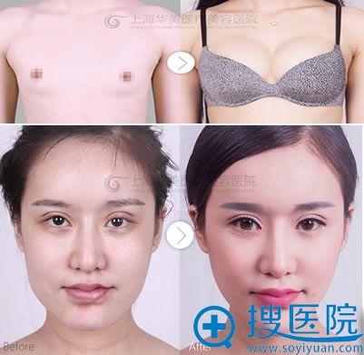 上海华美案例对比