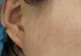 杭州东方整形医院曾茜硅胶假体+耳软骨隆鼻术后15天恢复日记