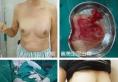 广州市荔湾人民医院专业清奥21年 奥美定取出+假体植入过程案例