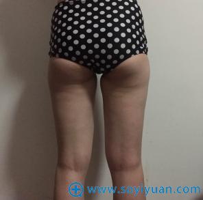 术前大粗腿