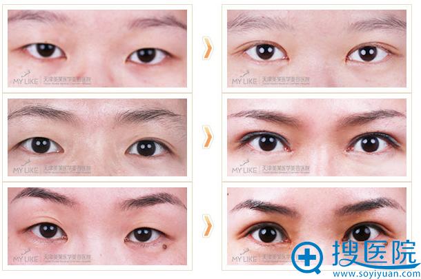 天津美莱整形医院双眼皮案例