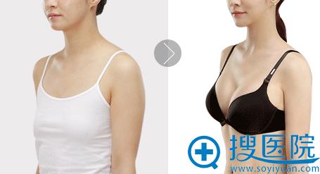 天津美莱整形医院假体隆胸案例