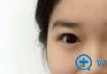 北京亚馨美莱坞张海明切开双眼皮术后半年恢复日记