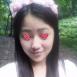 广西南宁东方整形医院鼻综合案例 13天妹子从路人秒变女神范