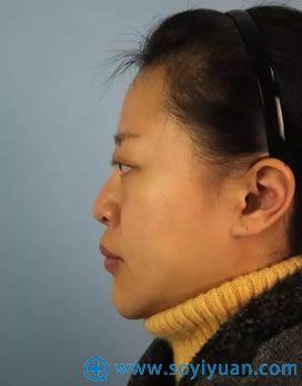 在吴氏嘉美做鼻部修复术前照