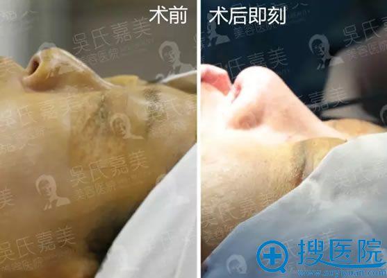 吴氏嘉美隆鼻修复术后效果对比