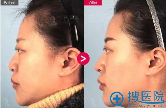 吴氏嘉美鼻修复术后3个月恢复效果图