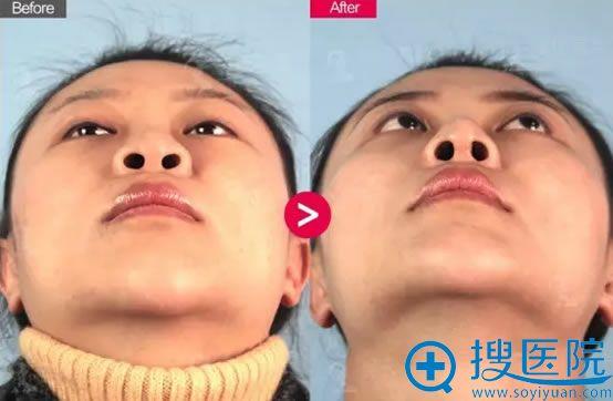 吴氏嘉美李允怡鼻修复术后3个月对比图