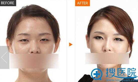 李允怡主任综合隆鼻+双眼皮案例