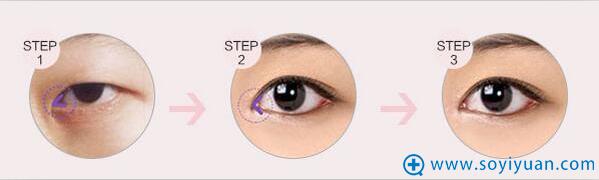 眼部年轻术 紧致提升