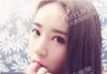 北京美莱整形医院自体脂肪面部填充心形脸案例 从25岁嫩回16岁