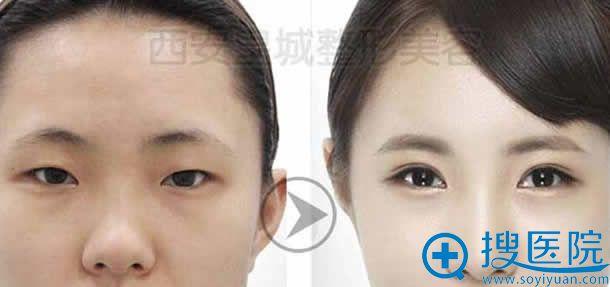西安皇城整形医院开双眼皮案例