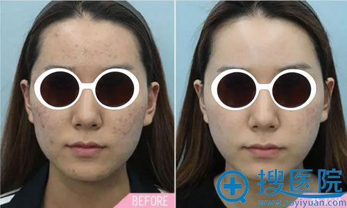 西安西京整形医院皮秒祛斑案例