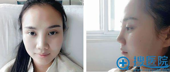 求美者鼻综合修复术前照