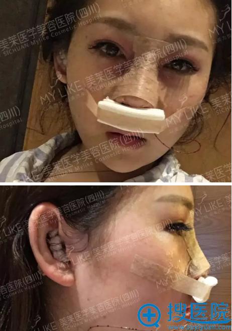 隆鼻术后第一天效果