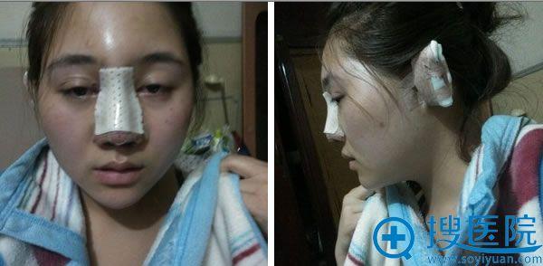 假体鼻综合术后第2天并没有肿