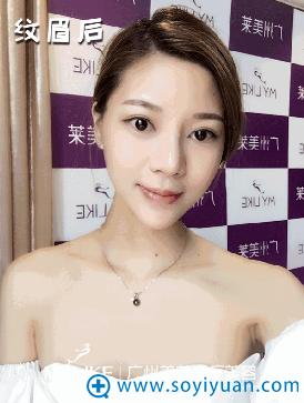 多久 看网红在广州美莱纹眉一年后的真实反馈