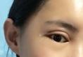 切开双眼皮+开外眼角案例为你揭秘大同清木姜际珠整形怎么样