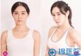 广州华美整形医院郝永生医生隆胸案例 5月优惠假体丰胸3888元