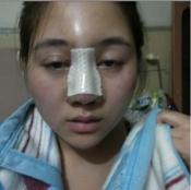 上海玫瑰医疗美容医院李鸿君假体鼻综合真实恢复期图片