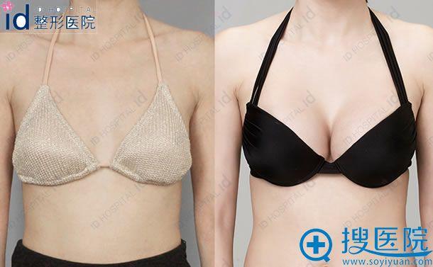 韩国ID水滴型假体隆胸案例图