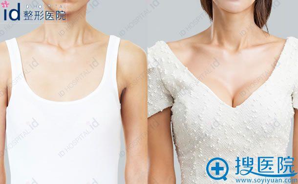 韩国ID水滴型假体隆胸前后效果对比