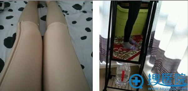 臀下,大腿,小腿吸脂第四天。