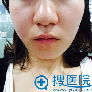 上海百达丽玻尿酸填充泪沟经历