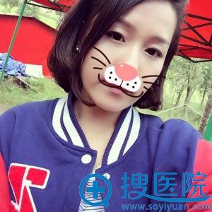 上海百达丽玻尿酸填充泪沟案例