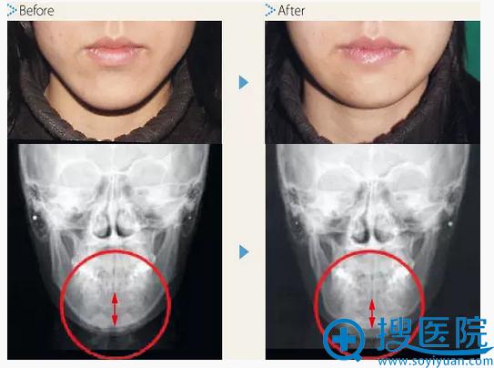 中北信昭下颌角削骨案例前后对比