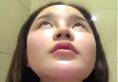 北京薇琳田秋梅院长隆鼻案例 看我1万多元做的韩式生科硅胶隆鼻
