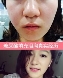 上海百达丽整形医院王维注射玻尿酸填充泪沟案例 瑞蓝3800元