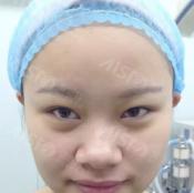 武汉爱思特整形医院硅胶隆鼻失败修复案例 二次隆鼻重获美丽