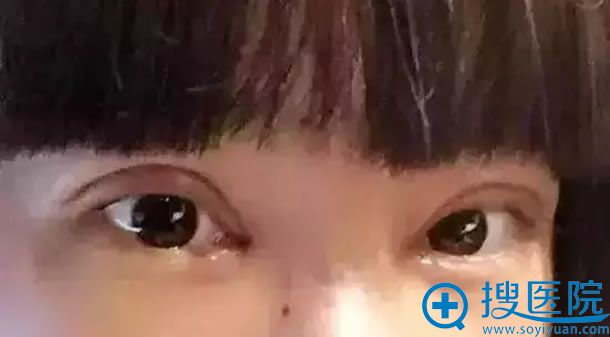 双眼皮手术后为什么会出现肉条