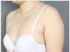 韩国365mc手臂抽脂亲身经历 花了4万多元手臂比原来瘦了9厘米