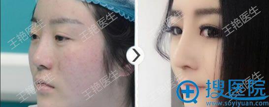 王艳鼻综合修复案例
