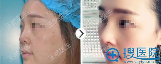 王艳全肋软骨鼻修复案例