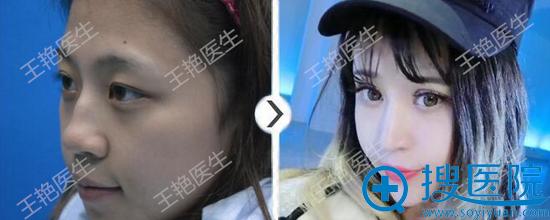 王艳鼻中隔+耳软骨塑形案例