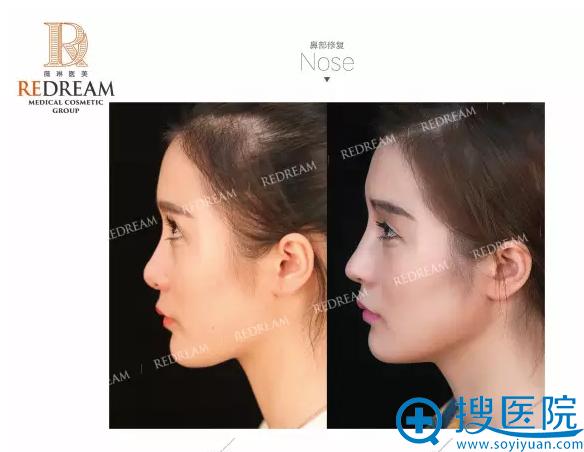 上海薇琳医疗美容医院鼻修复案例