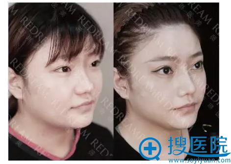上海薇琳医疗美容医院隆鼻前后对比案例