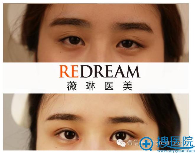 上海薇琳医疗美容医院双眼皮整形案例