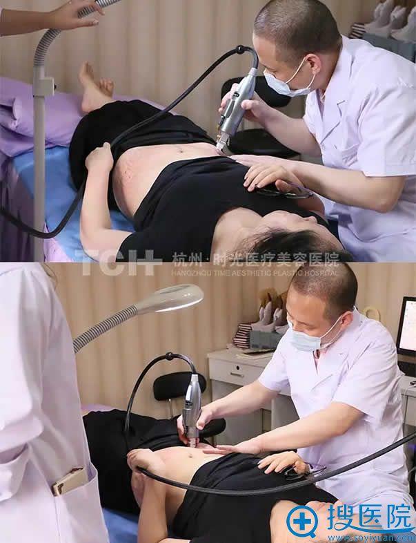 杭州时光用黄金微针治疗妊娠纹
