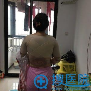 背部吸脂穿塑形衣的照片_北京知音