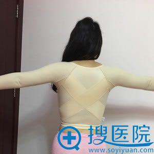 北京知音整形背部吸脂案例图