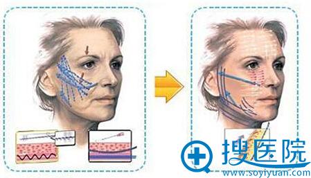 广东汕头曙光3D时光逆龄线雕除皱怎么样 案例对比图