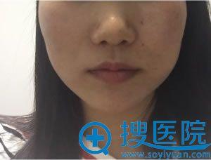 北京金圣注射瘦脸针天