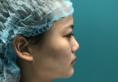 上海百达丽整形医院韩嘉毅医生鼻综合隆鼻案例 4万多元收获美鼻