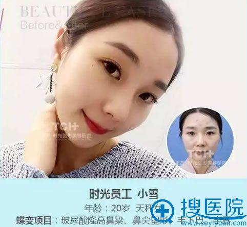 重庆时光隆鼻案例图